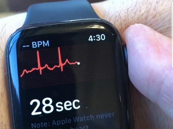 Apple watch 4 / ECG