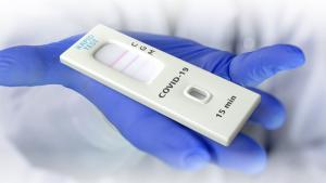 MoPH: Rapid antigen COVID-19 tests available at private healthcare facilities