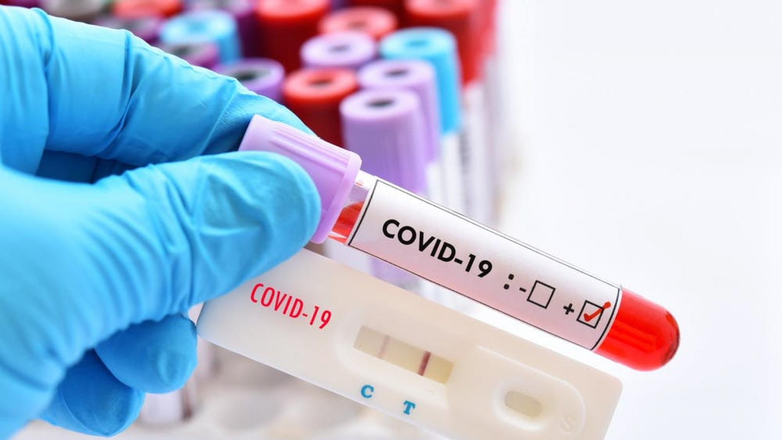 COVID-19: MoPH announces 258 new cases and 128 new recoveries